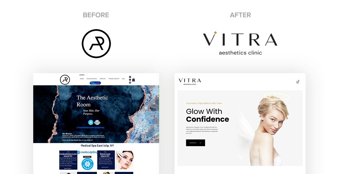 Vitra Aesthetics Clinic Before and After